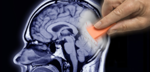 Peut-on faire quelque chose contre l'Alzheimer ?