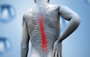 Traiter une entorse lombaire par la physiothérapie